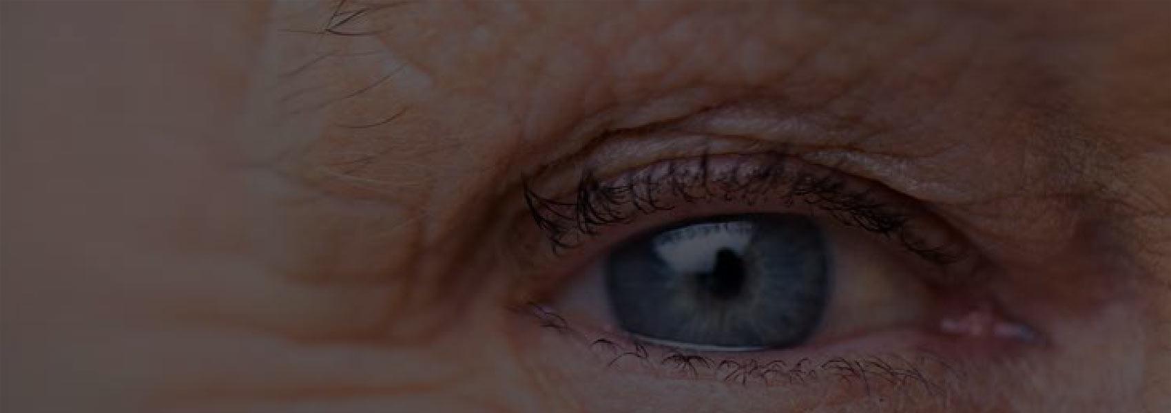 sliders-oog